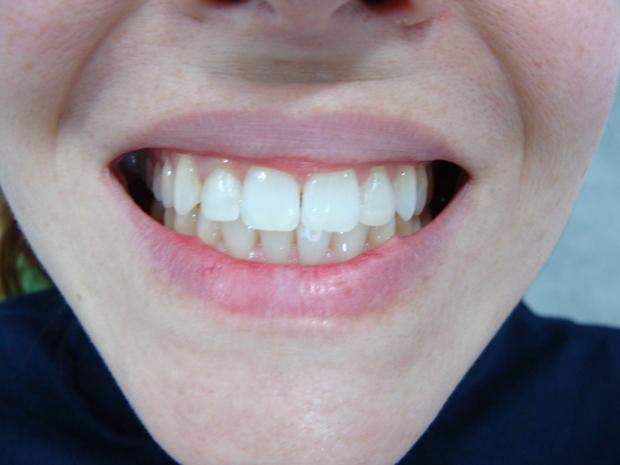 dientes-blancos